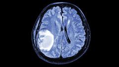 MRI of brain cancer