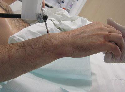 Hace una semana un equipo de 30 cirujanos consiguió hacer el transplante
