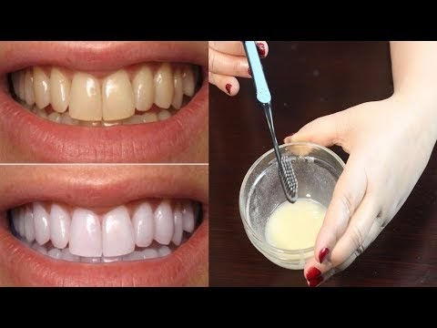 How To Whiten Teeth - Best Teeth Whitening Method - Teeth Whitening At Home