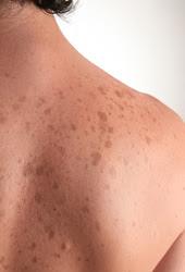 Skin Discoloration Novato CA