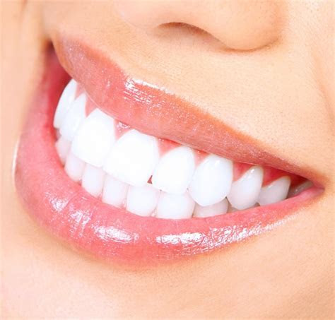 How to Whiten your Teeth: Simple Remedies