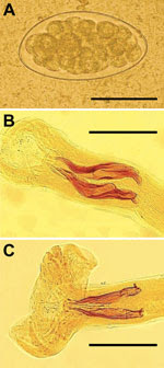 Thumbnail of Trichostrongylus spp. eggs and nematodes isolated from 1 patient in Guilan Province, Iran, 2014. A) Egg of diameter 87.5 × 48.0 μm obtained from fecal sample of patient by using formalin-ether method. Scale bar indicates 50 μm. B) Bursa copulatrix and spicules (slightly unequal, 135–156 µm long, and boat-shaped with a stepped tip and an outgrowth capping at proximal end) of T. colubriformis adult male. Scale bar indicates 100 μm. C) Bursa copulatrix and spicules (equal in size, 160–