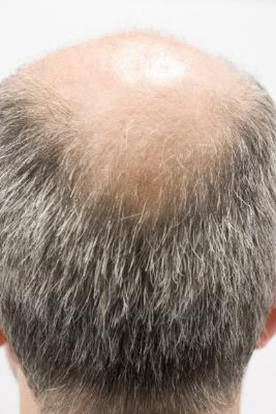 Does Taking Too Much Vitamin B Make Your Hair Fall Out ...