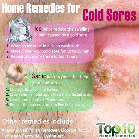 Medicine For Cold Sores - Health Tips and Music