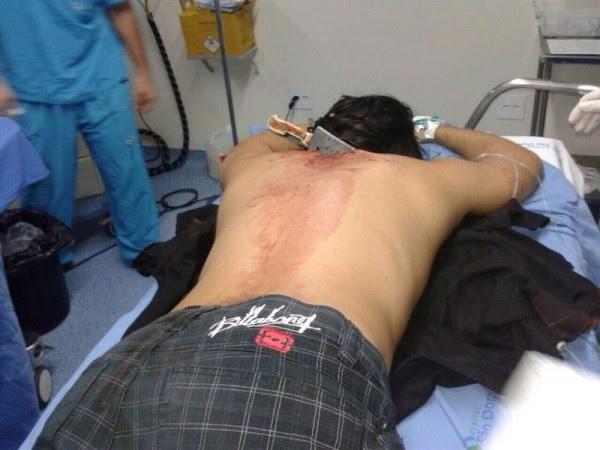 Kelvin Chiang, uma das vítimas do crime que ocorreu ontem na festa do senador eleito Roberto Rocha