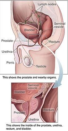 Prostatitis zene