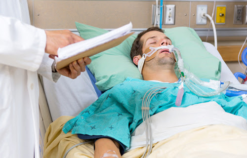 Psychiatric Risks Associated With Mechanical Ventilation ...