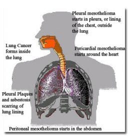 Three Types Of Mesothelioma: Pleural, Peritoneal, Pericardial
