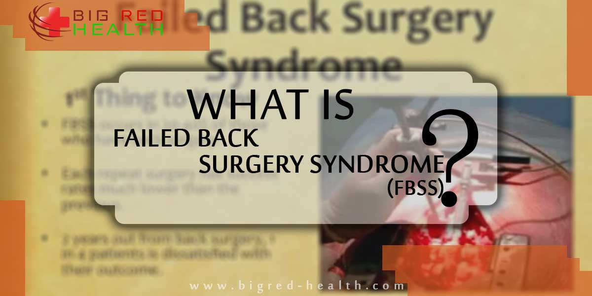 What is Failed Back Surgery Syndrome (FBSS)? - bigred-health