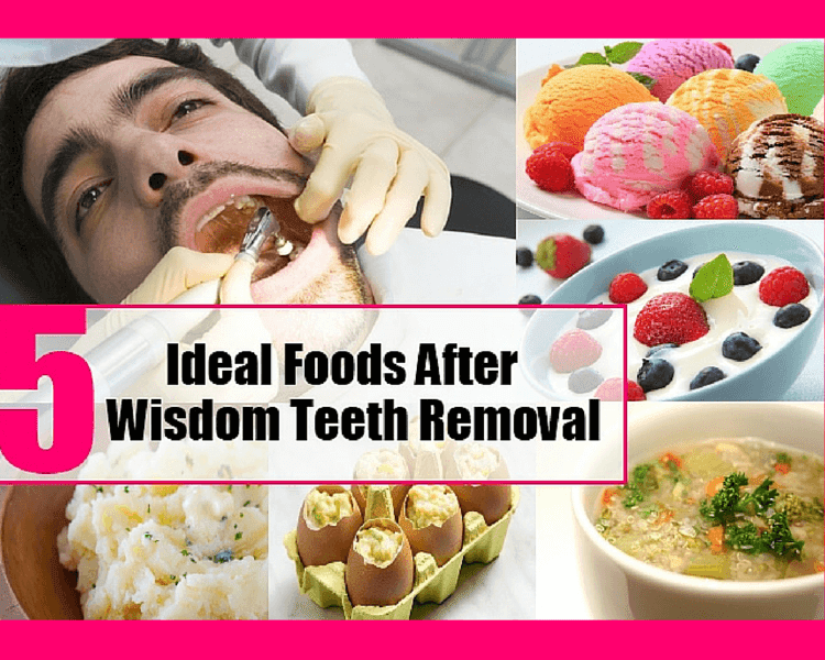 Best Foods to Eat After Tooth Extraction & Wisdom Tooth ...