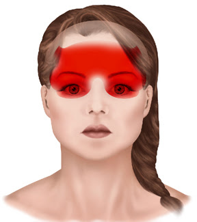 Signs and Symptoms of Headaches - General and Cosmetic Dentist