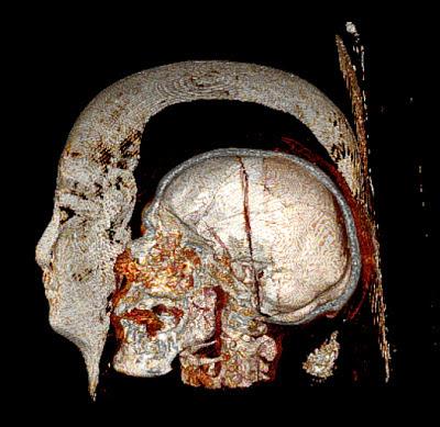 mummy-scan-110517