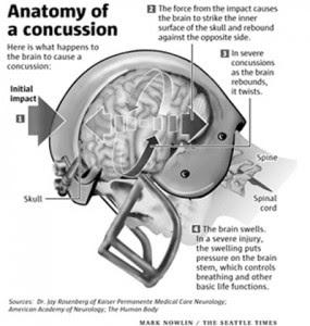 Brain Concussion Symptoms, Causes, Diagnosis, And ...