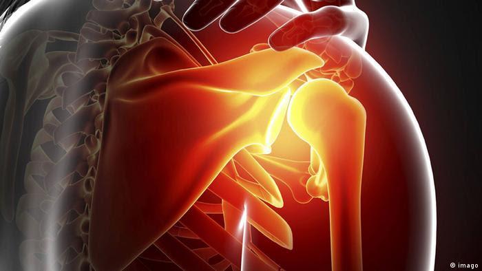 Schulter Schmerzen (imago)