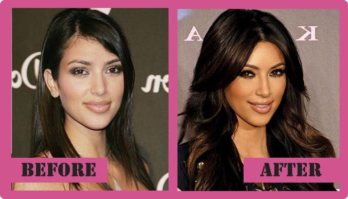 The Evolution of Kim Kardashians Face