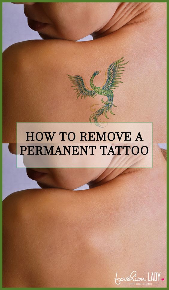 How To Remove A Permanent Tattoo Diy Methods And Surgical Methods