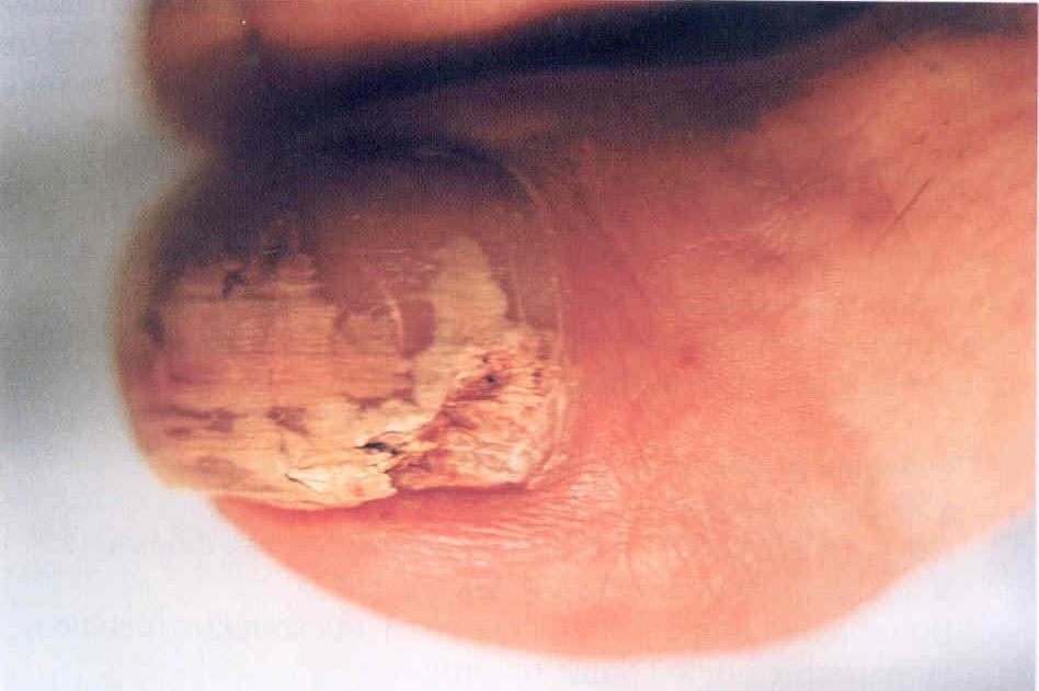 Лучшие народные средства лечения грибка ногтей