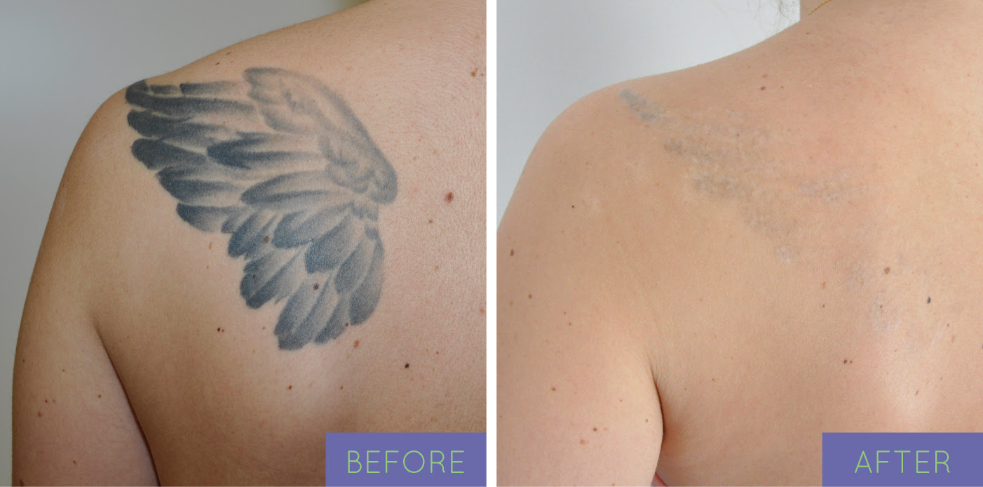 Tattoo Removal After Pictures | Tattoo Ideas