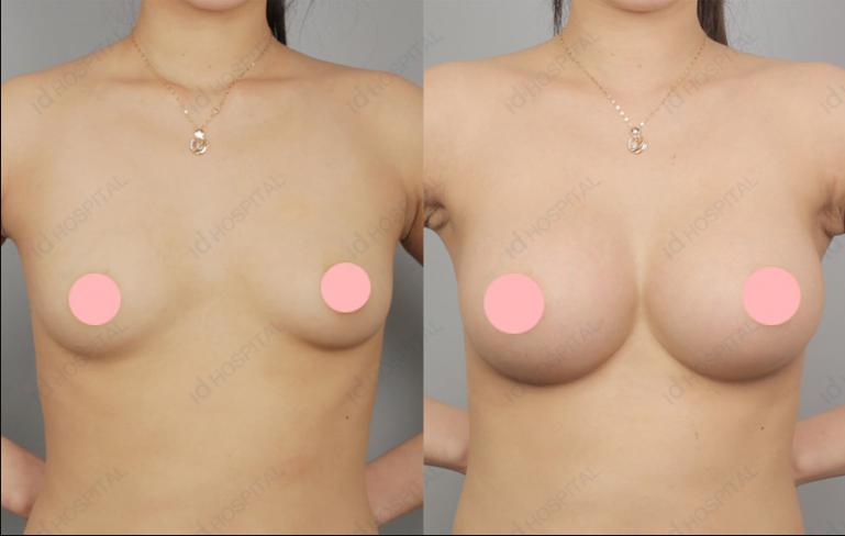 breast augmentation q&a