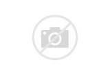 Acute Pain Hip Area Images