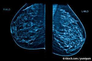 Mamograma 3D