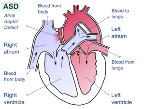 Atrial septal defect (ASD) is a form of congen...