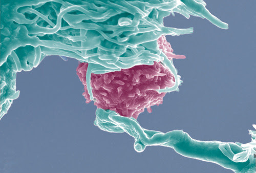 """Em imagem de microscópio, células NK (em verde) conectam-se a uma célula cancerígena, para tentar romper sua membrana. Estudos demonstram que """"viver na contramão"""" é um dos fatores para estimular defesa natural contra câncer"""