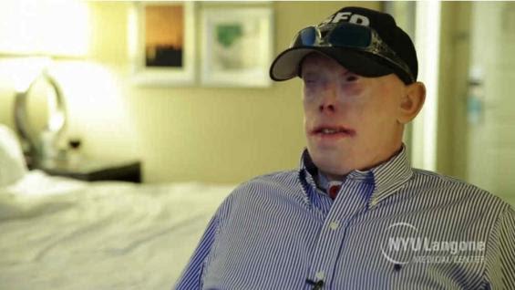TRASPLANTADO. Patrick Hardison sufrió gravísimas quemaduras cuando intentaba rescatar a una mujer.