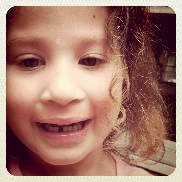 Sophia's first missing tooth.  :(