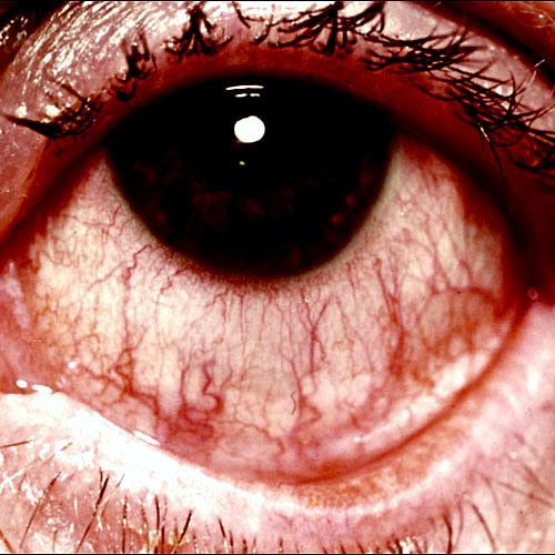 http://idmgarut.files.wordpress.com/2009/02/kl05.jpg