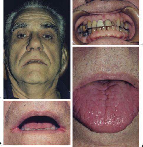 4: Examination of the Head and Neck   Pocket Dentistry