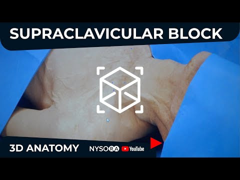 Anatomy of the Supraclavicular brachial plexus block using NYSORA 3D Anatomy video