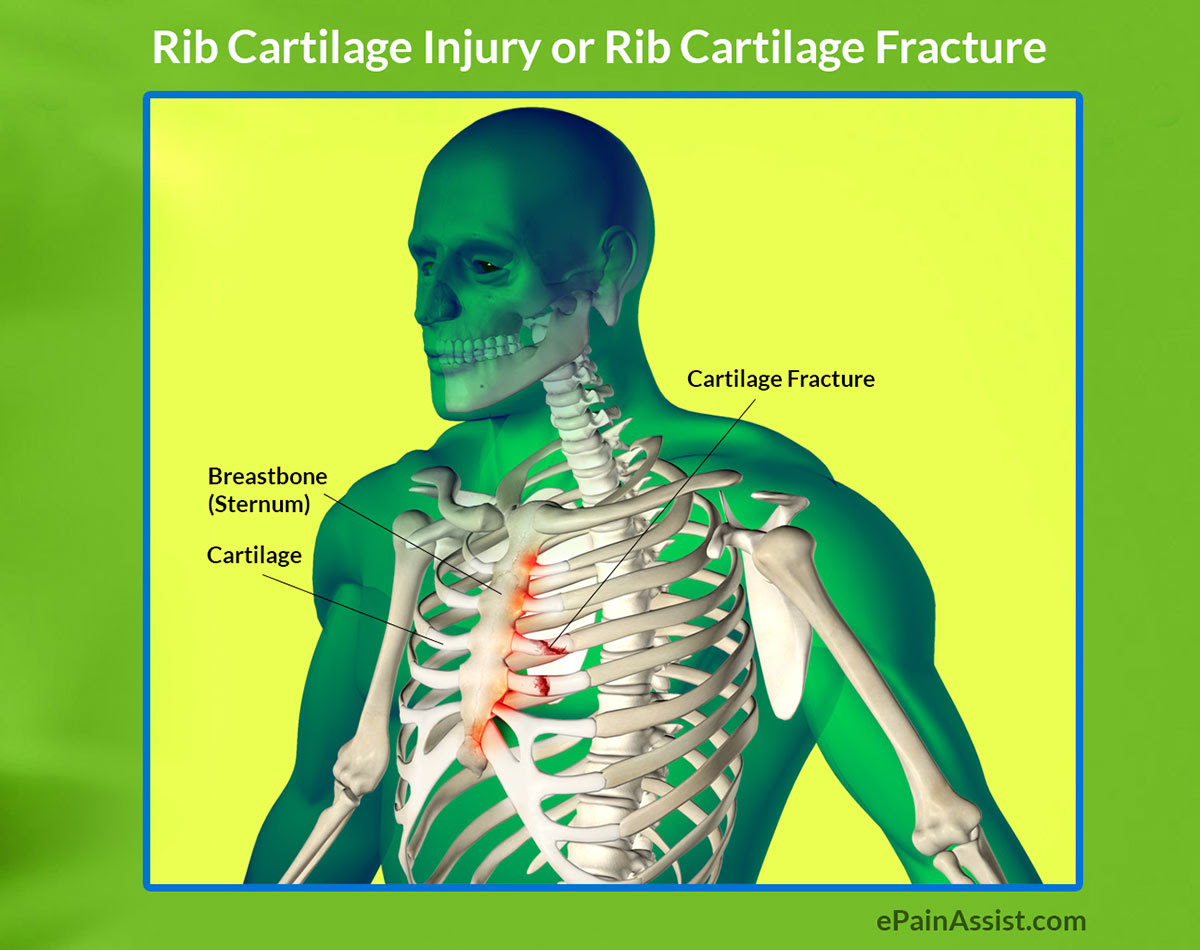 http://www.epainassist.com/images/Article-Images/Rib-Cartilage-Injury.jpg