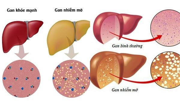 gan nhiễm mỡ, bệnh về gan, xơ gan, thoái hóa mỡ gan