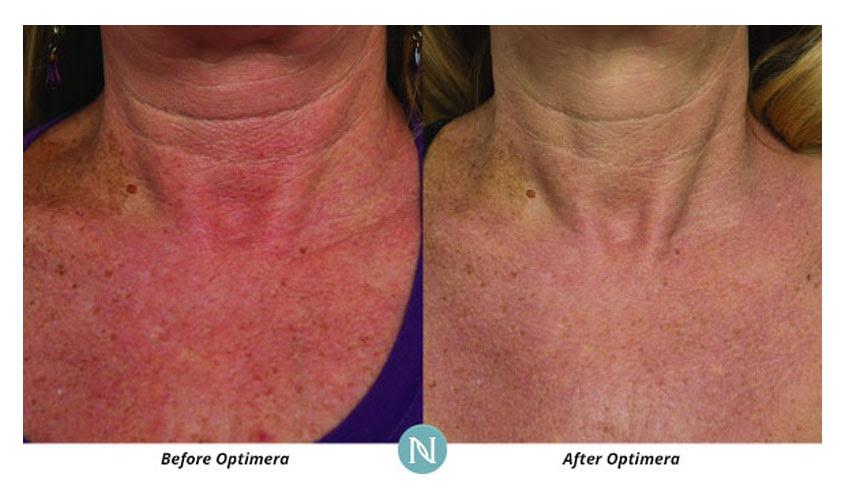 Nerium International - Karen Mathewson | Sudbury, ON ...