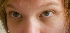 Example of dark circles