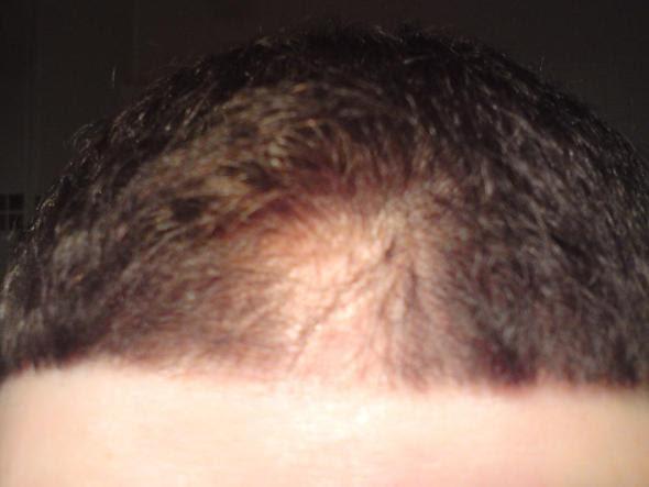 Wie Schnell Wachsen Haare In Der Woche