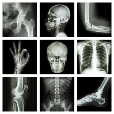 How Many People Have a Career in Radiology? | Chron.com