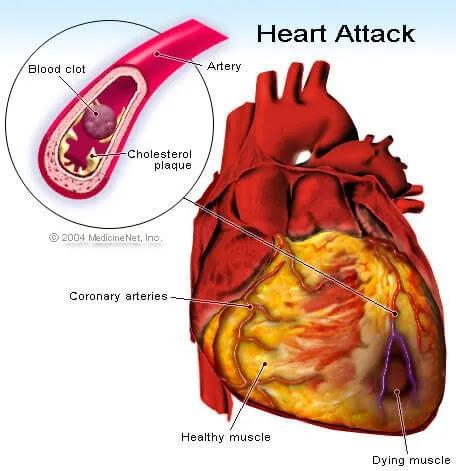 Heart Attack ilustrasi - Myocardial  Infarction