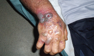Skin ulcer caused by cutaneous anthrax