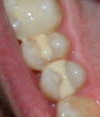 dental-fillings-composite filling
