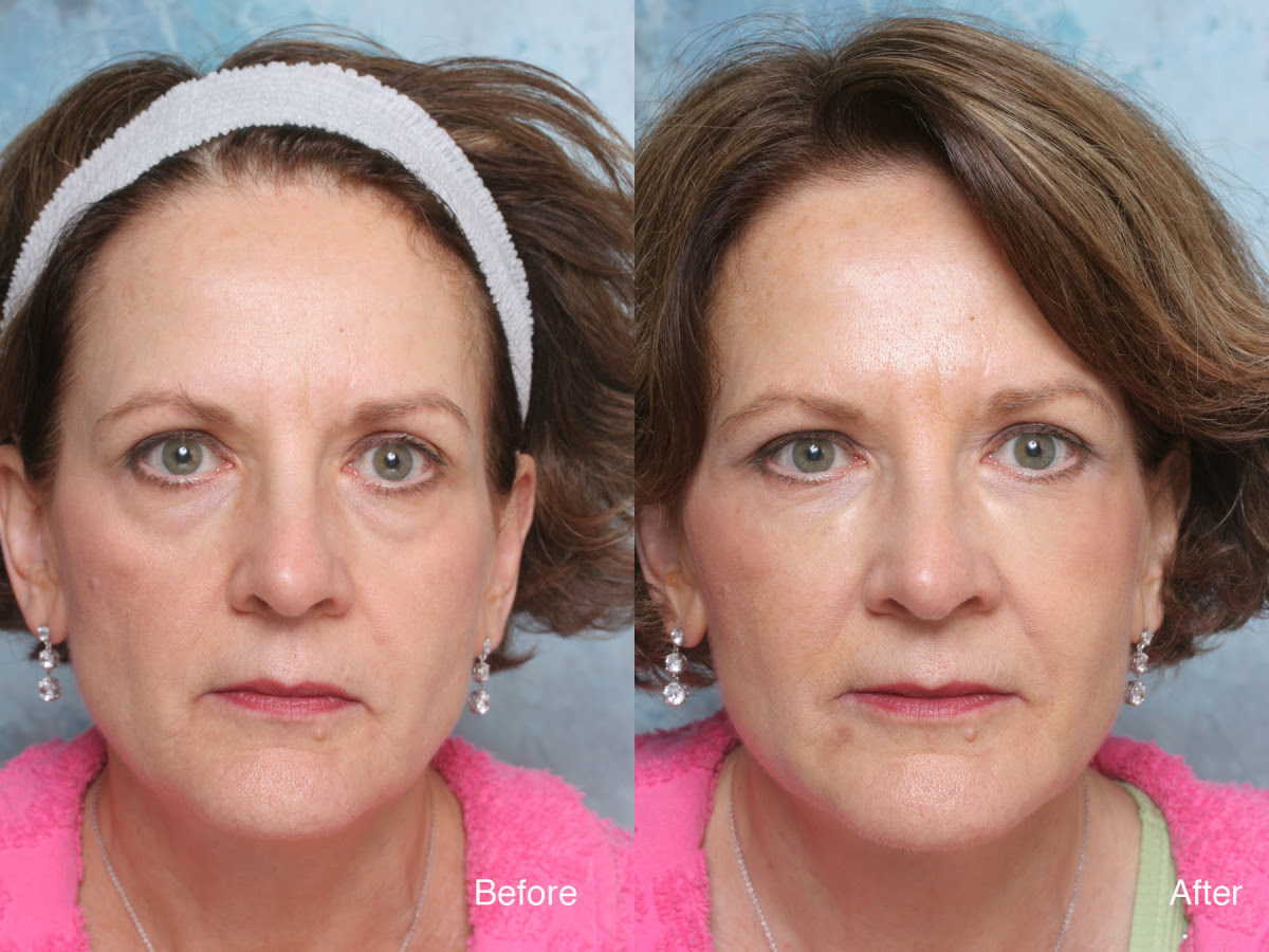 How to Get Rid of Dark Puffy Bags Under Eyes