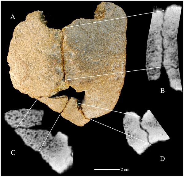 Figura 1 El Xujiayao 11 huesos parietales.  Vista exterior (A).