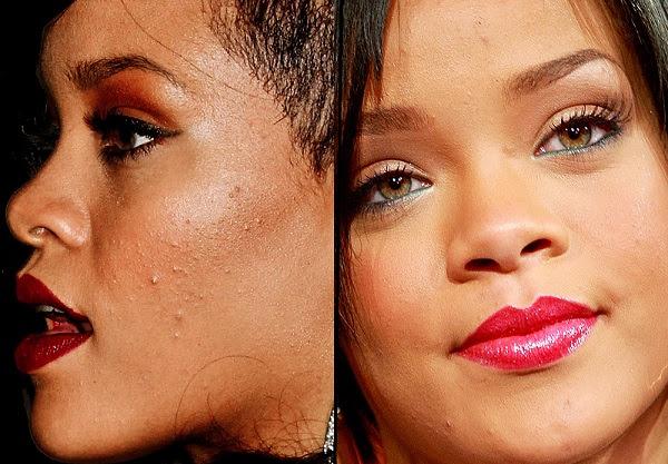 Rihanna Acne Scars