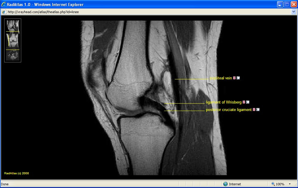 mri anatomy of elbow   axial cross sectional anatomy of