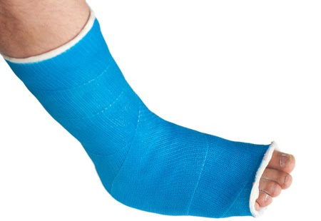 Broken Toe Symptoms Signs Treatment And Healing Time