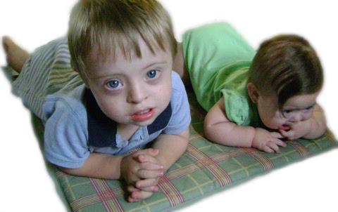 Frases De Amor Para Un Hijo Con Síndrome De Down