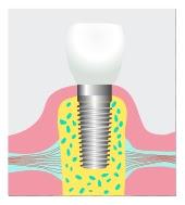 dental implant Austin