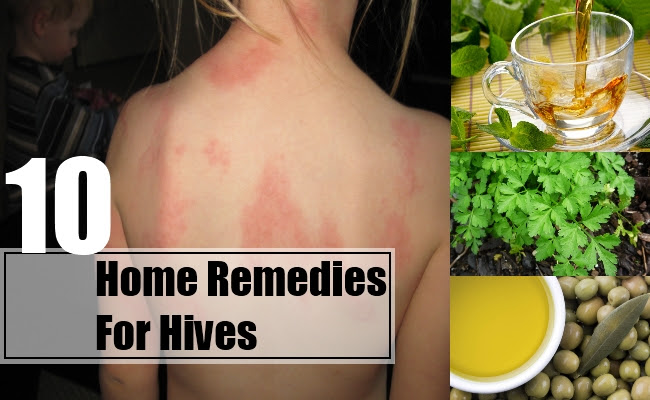 10 Home Remedies For Hives - Natural Treatments & Cure For ...