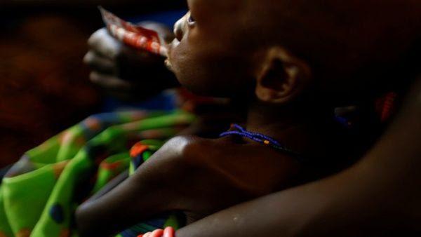 Niño víctima de la hambruna